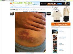 藤崎奈々子、テキーラを飲み過ぎて階段から転落!悲惨……赤黒いアザがくっきりと!