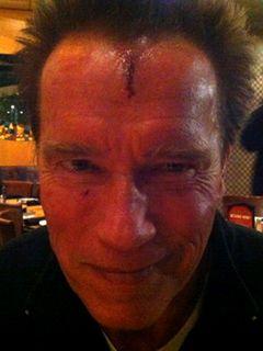 シュワちゃんが撮影中にケガ 額から血を流している写真をツイッターで発信