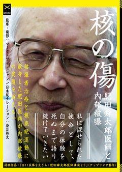 内部被曝の実情つづるドキュメンタリー『核の傷:肥田舜太郎医師と内部被曝』で染谷将太がナレーション