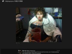 ビリー・レイ・サイラス、原因不明の大量出血をしている息子の写真をツイート