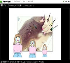 辻希美、円形脱毛症に 自ら写真を公表