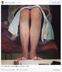 真木よう子、足がアザ傷だらけ!「痛そう」と心配の声