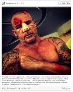 「プリズン・ブレイク」兄役が頭部100針縫う大けが負うも撮影続行 数週間で復帰へ