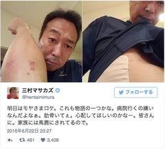 三村マサカズ、痛々しい生傷 助骨に痛み…自転車で転倒
