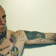 壮絶な顔面タトゥー除去手術を受けた男の実話…痛すぎる映像公開